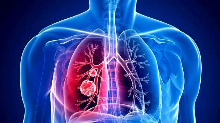 Un nou tratament împotriva cancerului de plămâni a redus mortalitatea pacienților cu 51%