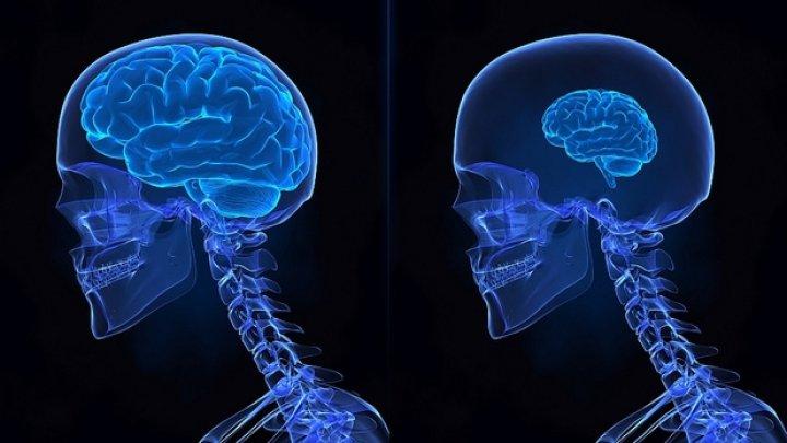 Cercetătorii au demonstrat: Creierul uman se poate micşora din cauza stresului