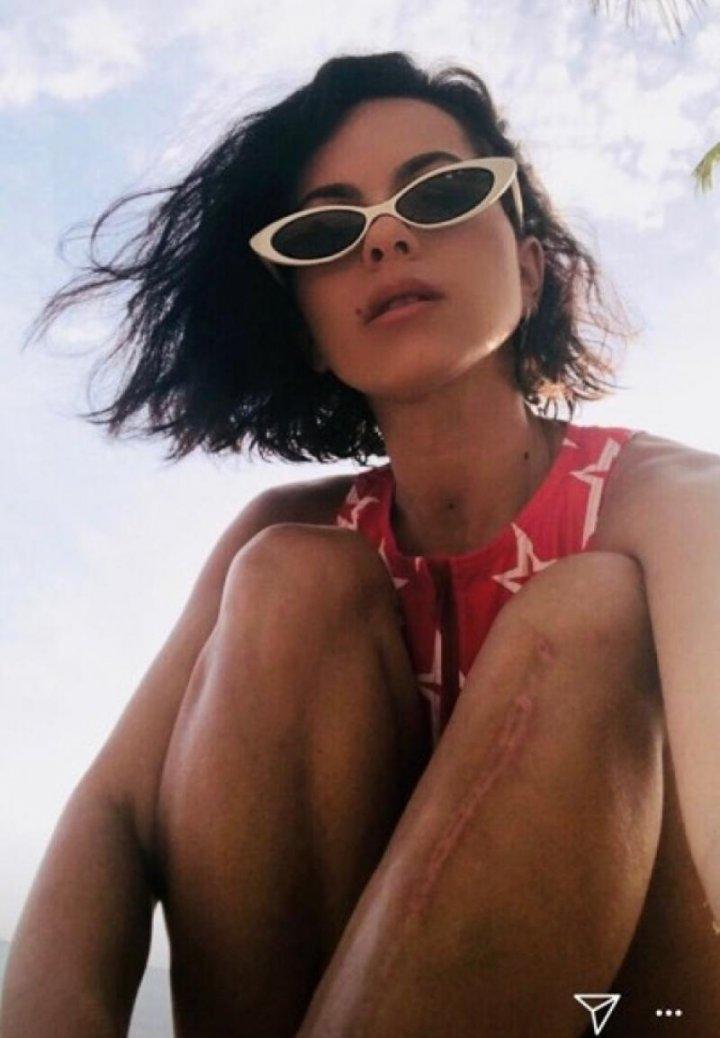 Inna a rămas cu o cicatrice pe piciorul stâng, după ce scena s-a prăbușit peste ea (FOTO/VIDEO)