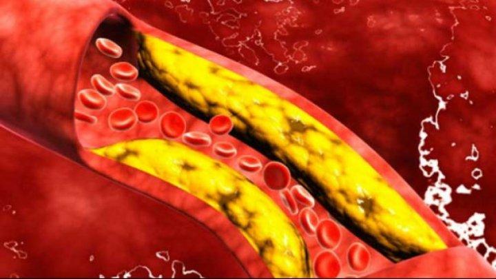 Cum îţi poţi curăţa vasele de sânge de colesterol în doar câteva zile