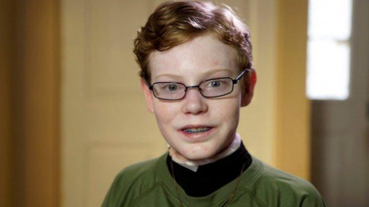 IMAGINI CUTREMURĂTOARE! Băiatul cu pielea sensibilă ca aripa unui fluture a murit
