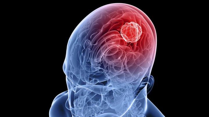 Un vaccin ar putea prelungi viaţa persoanelor care se confruntă cu glioblastomă, cel mai agresiv tip de cancer cerebral