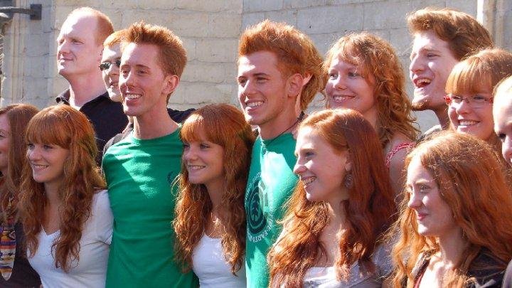 Oamenii roșcaţi simt durerea diferit. Ce beneficii le aduce totuşi culoarea părului