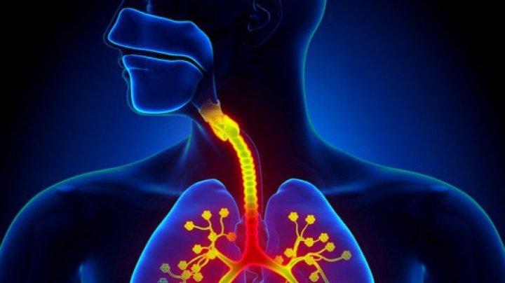 Cele mai bune alimente pentru infecţiile respiratorii şi eliminarea toxinelor din plămâni