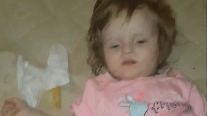 Imagini de COŞMAR. Două fetiţe au fost găsite de vecină, înconjurate de păduchi, viermi şi mizerie. Unde era mama lor