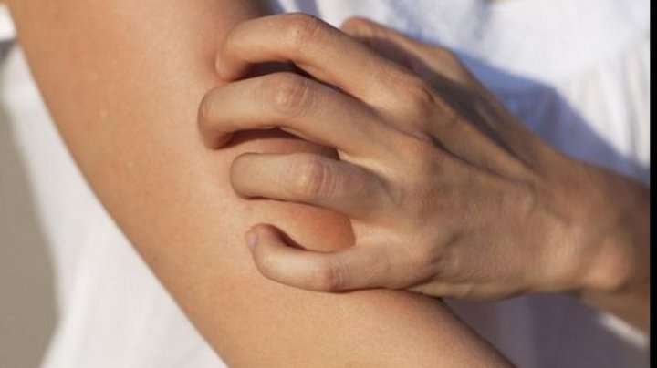 TREBUIE SĂ ŞTII! Ce boli poate anunța mâncărimea pielii
