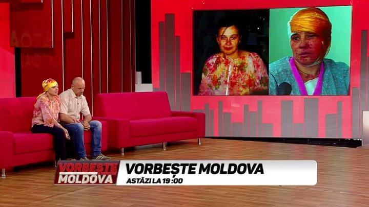 Adevărul în cazul femeii din Călăraşi, stropită cu acid, la VORBEŞTE MOLDOVA