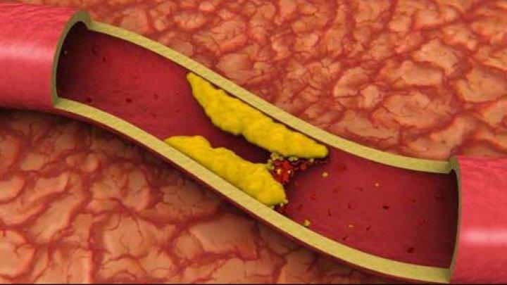 BINE DE ŞTIUT! Alimente care ţin colesterolul sub control