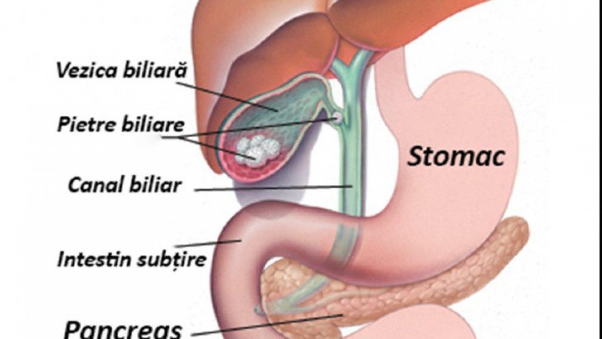 forum plat pentru negi uterine papiloma hpv transmissao