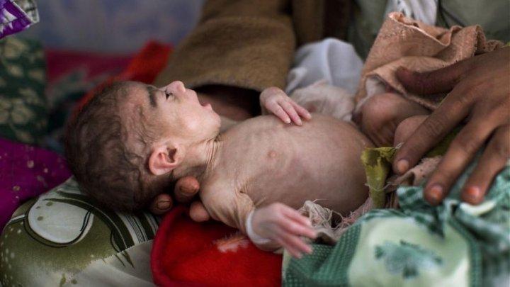 STATISTICI ÎNGROZITOARE: Aproximativ 85.000 de copii au murit de malnutriţie din cauza crizei din Yemen