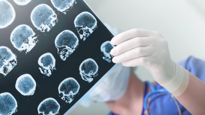 Semnele care îţi spun că faci accident vascular cerebral. Mergi urgent la spital