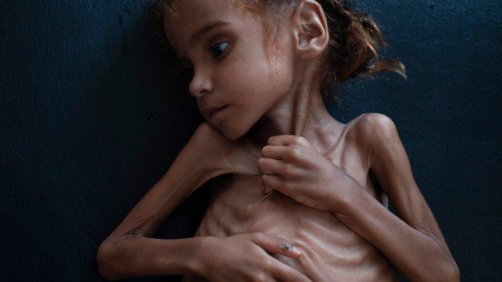 Fetiţa de 7 ani care a devenit simbolul crizei umanitare din Yemen a murit