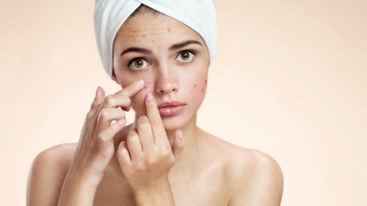 Bine de ştiut! Trei remedii naturale care te vor ajuta să scapi de acnee