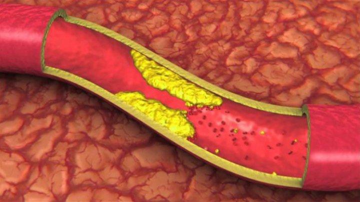 Trebuie să știi asta! Alimentele care îți distrug organismul în doar 9 zile