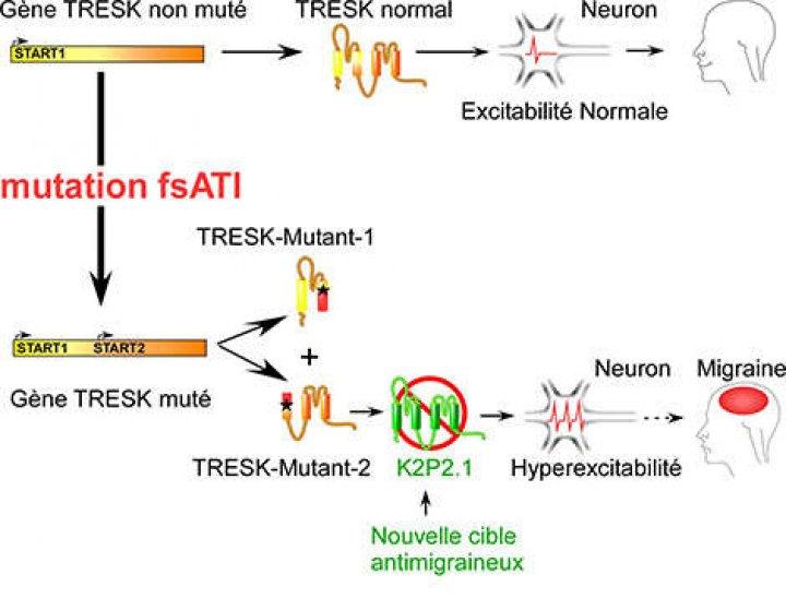 Un nou mecanism aflat la originea atacurilor migrenoase, identificat (FOTO)