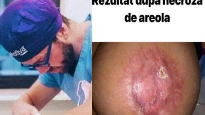 IMAGINI ȘOCANTE! Cum arată o pacientă care a fost MUTILATĂ de falsul chirurg italian (FOTO)