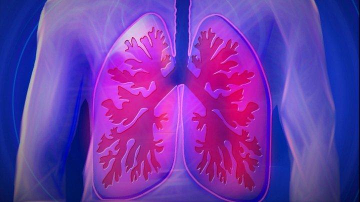 TREBUIE SĂ ŞTII! Cum elimini toxinele din plămâni