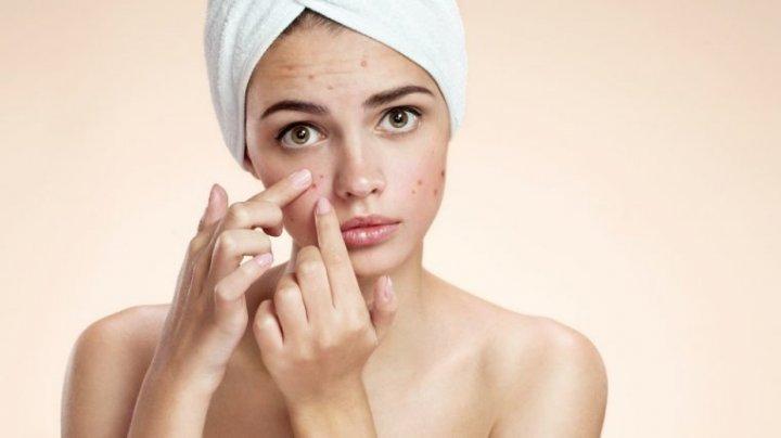 ESTE BINE SĂ ȘTII! Trei remedii naturale care te vor ajuta să scapi de acnee