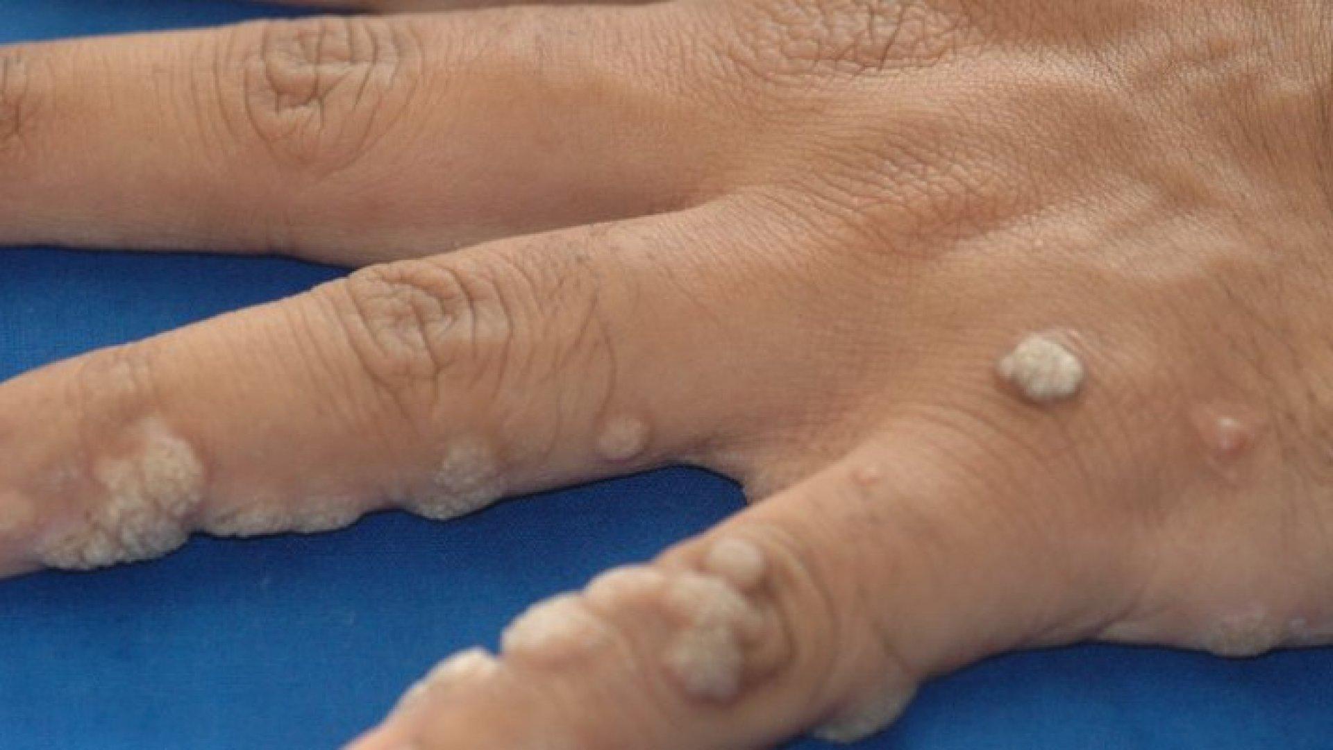 tratamentul simptomelor parazitului