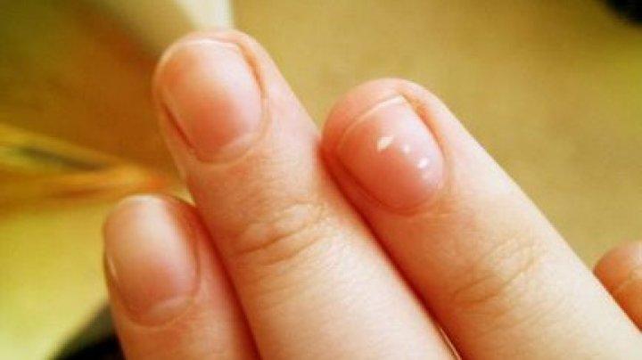 Bine de ştiut! Petele albe pe unghii SUNT un motiv de a merge la medic