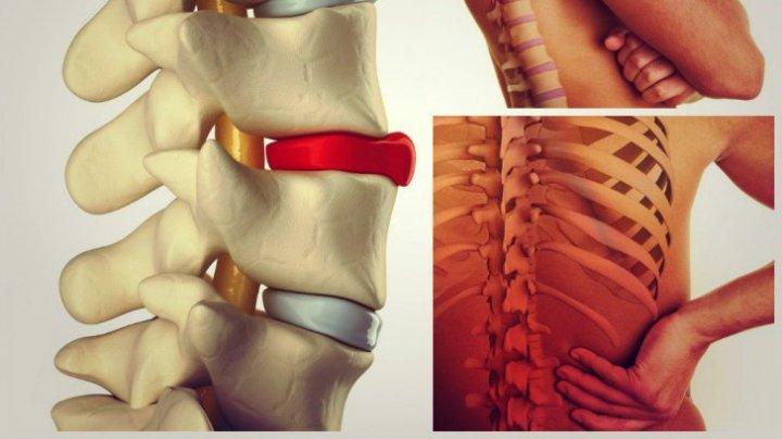 Tratament brusc al articulațiilor lombare. ŞTIRILE ZILEI