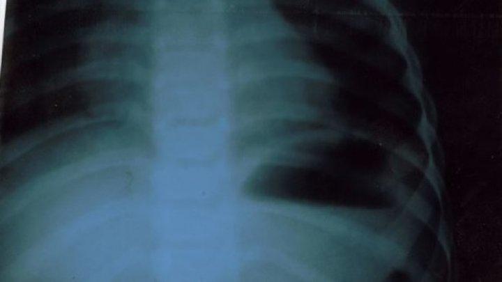 O copilă de 2 ani din Capitală a ajuns de urgenţă la spital. Ce au extras medicii din STOMACUL acesteia (FOTO)