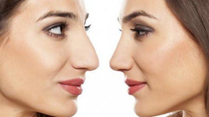 Nu mai este nevoie de operație estetică! Modificarea nasului va dura fix 5 minute. Cum este posibil
