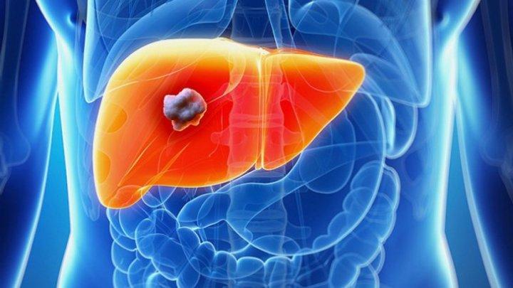 Bine de știut! Primele simptome ale cancerului de ficat pe care mulţi le ignoră