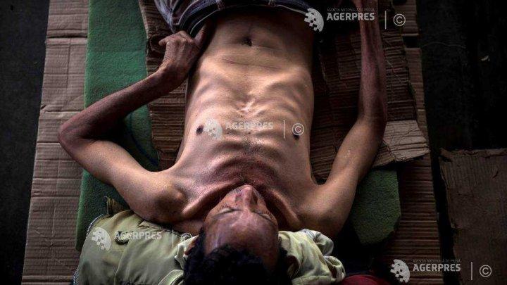 Populaţia mondială care suferă de obezitate a depăşit-o pe cea care suferă de foame