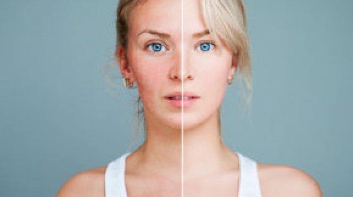 Bine de ştiut! 6 motive pentru care ţi se înroşeşte pielea