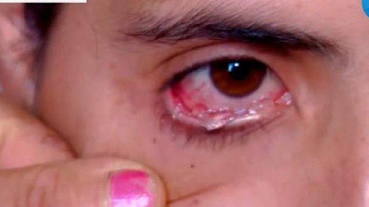 """Trăiește un adevărat coșmar. O femeie plânge cu lacrimi de """"cristal"""". Medicii sunt uluiţi"""