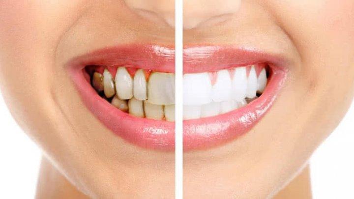 Remedii pentru albirea dinţilor în mod natural. Trucuri cu care nu dai greș
