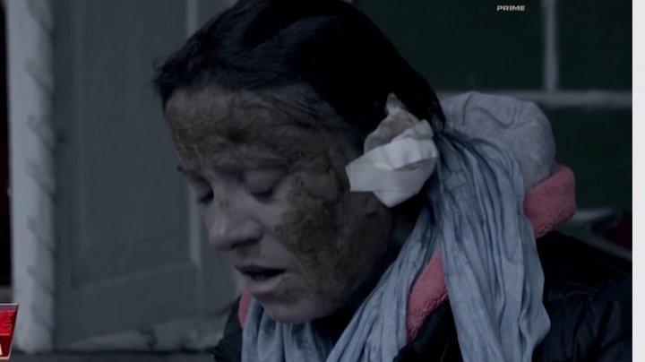 Vorbeşte Moldova: I-a turnat benzină peste față iar, ulterior, i-a dat foc. Detaliile femeii desfigurate (VIDEO)