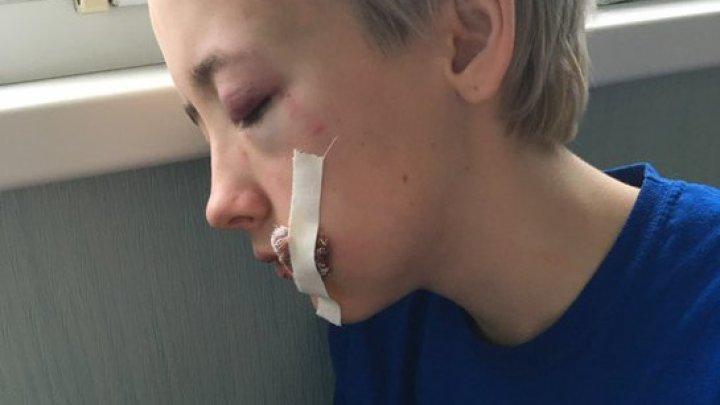 O fată de 18 ani, bătută cu bestialitate din cauza tunsorii şi stilului pe care îl are (FOTO)