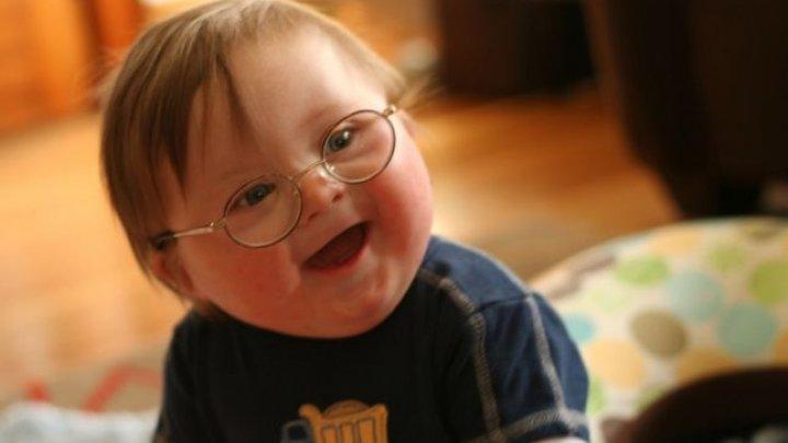 STUDIU: Noi gene implicate în sindromul Down au fost descoperite de cercetători