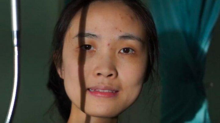 Cazul inedit al unei femei cu o boală rară: De 11 ani locuiește într-un spital