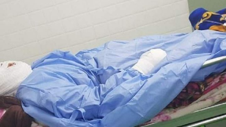 O femeie, desfigurată de soț în timp ce dormea. Bărbatul i-a turnat ulei fierbinte pe față