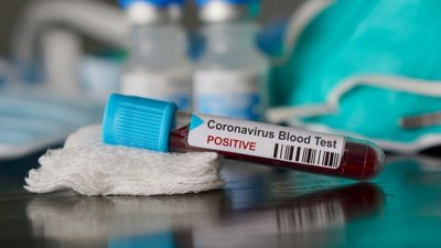 Coronavirus în Italia: Numărul deceselor crește din nou, dar scade cel al noilor cazuri confirmate