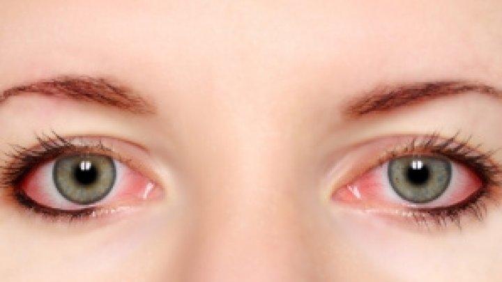 Avertismentul medicilor: Ochii roșii ar putea fi un simptom rar al coronavirusului