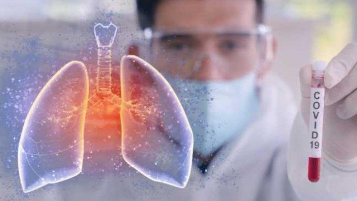 Experţi britanici: Unul din trei pacienţi cu COVID-19 riscă să aibă o sănătate precară pe termen lung sau chiar să fie afectat pe viaţă