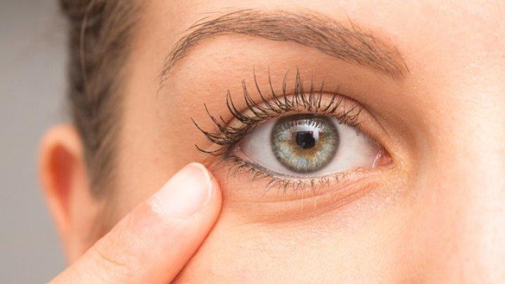 Trucuri simple pentru a reduce cearcănele și pungile de sub ochi