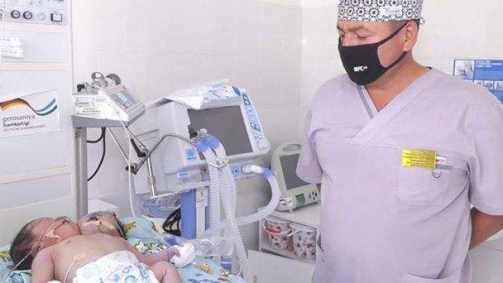 O femeie din Samarkand a născut un copil cu două capete. Medicii sunt uluiţi