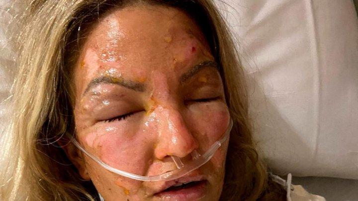 O femeie a suferit arsuri grave după ce și-a dat cu dezinfectant pe mâini și a folosit apoi o lumânare