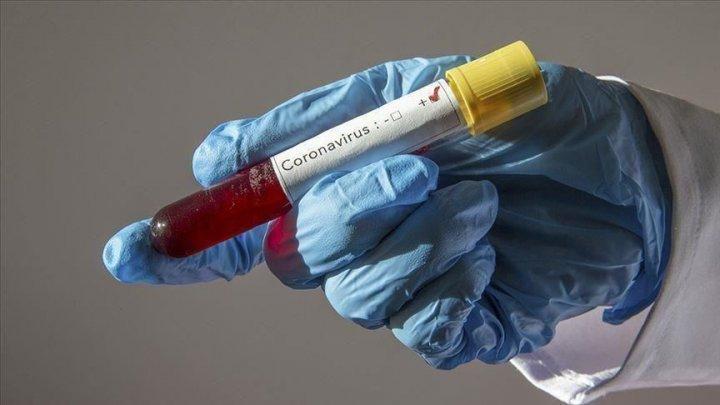 Oamenii de știință americani lucrează la un spray nazal împotriva COVID-19
