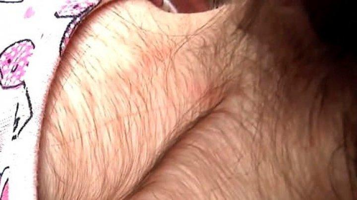 20 de copii din Spania au păr pe tot corpul, după ce li s-a administrat un medicament greșit