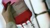 Впервые придя сдавать кровь, парень узнал, что уже был донором и болен гепатитом