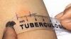 Станут известны результаты туберкулиновых проб в Дондюшанах