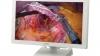 Sony выпустила первый в мире OLED-дисплей в помощь хирургам