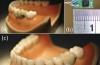 Информацию о здоровье человека будут собирать встроенные в зубы чипы