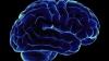 Ученые выяснили, что в старости наш мозг ржавеет в буквальном смысле